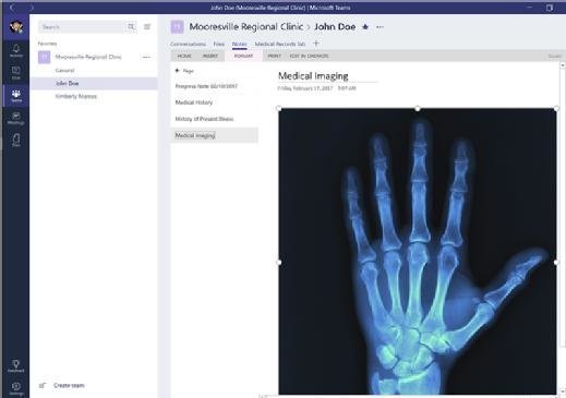 X-ray image in Microsoft Teams