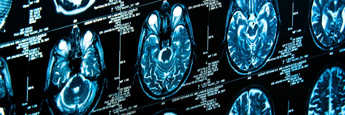 RSNA inundated by AI in radiology